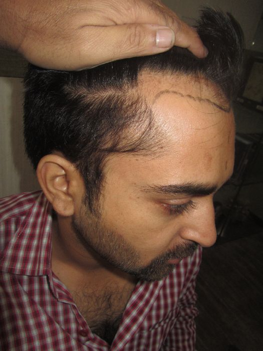 Hair transplant in india video