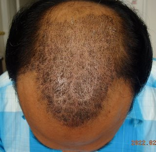 Toprol Side Effects Hair Loss