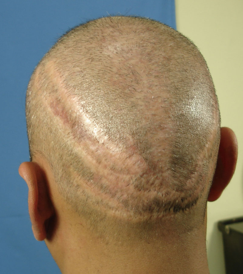 scar tissue Ankeny, ia - what is scar tissue and how does it affect your range of  can  cause micro-trauma to the soft tissue (often referred to as an  it is important to  remove these scar tissue adhesions in order to reduce pain and.