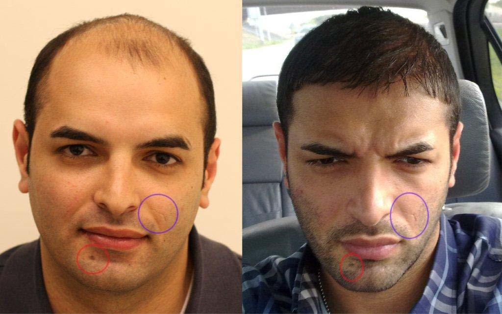 Hair transplant uk free consultation