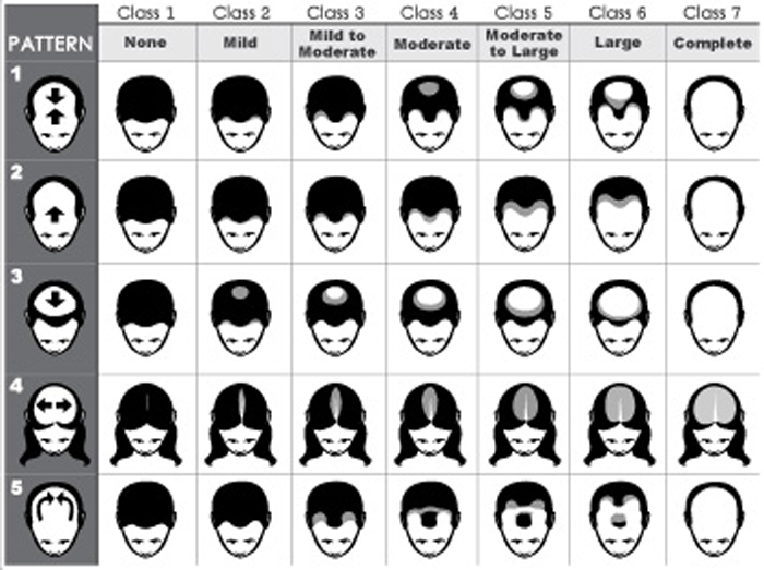 Hair loss cure forum