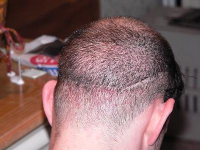 Hair transplant scar shaved think