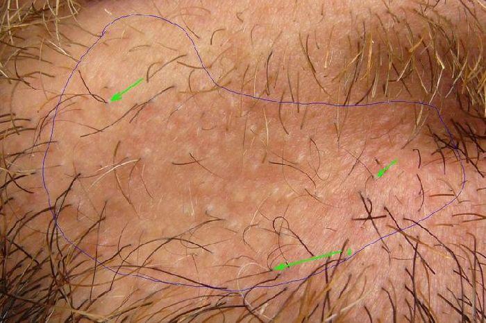 Pili Multigemini Beard Treatment Www Pixshark Com