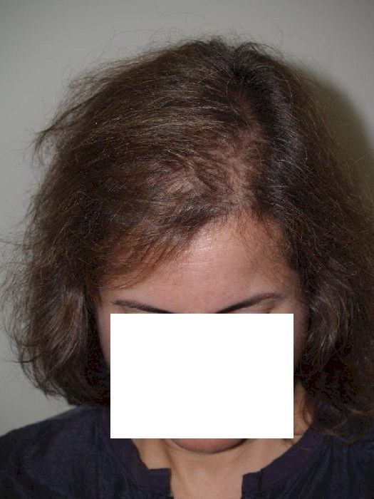 Female Receding Hairline At 20
