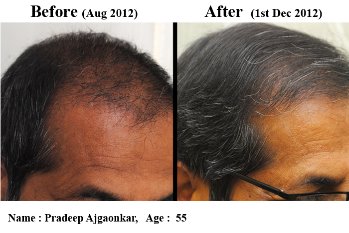 Hair Loss Forum Dr Nigam Stem Cell Hair Multiplication Patient