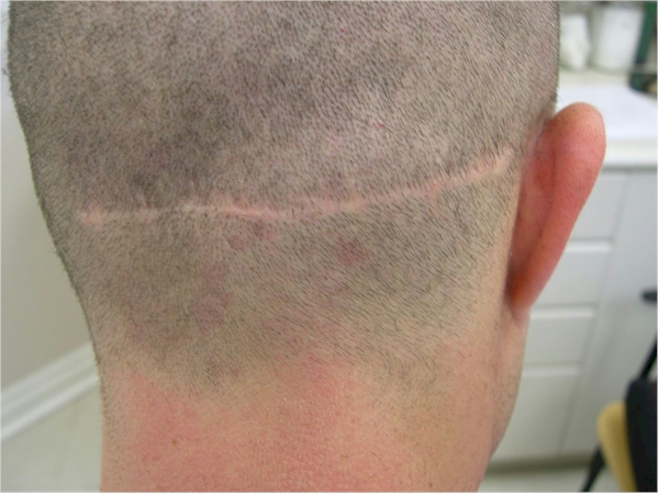Hair transplant scar shaved are