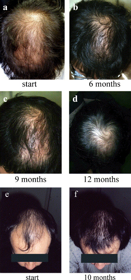 HairLossTalk - Hair Loss & Alopecia.