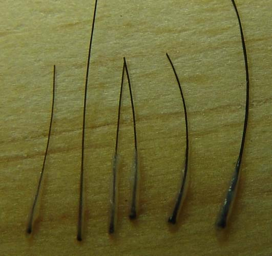 Hair Loss Forum - 15 grafts patch test in Vitro Hair Doubling as ...