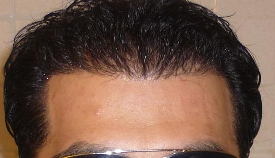 brad pitt hairline. Brad#39;s Hairline and temple