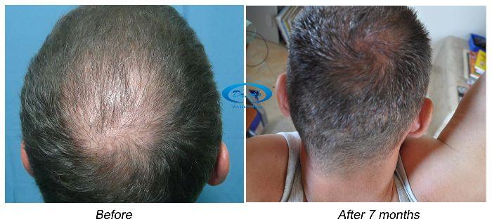 Hair Loss Forum -