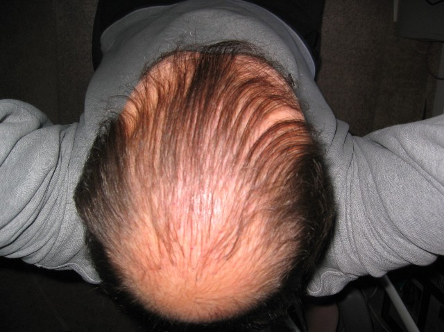 Clomid side effect hair loss