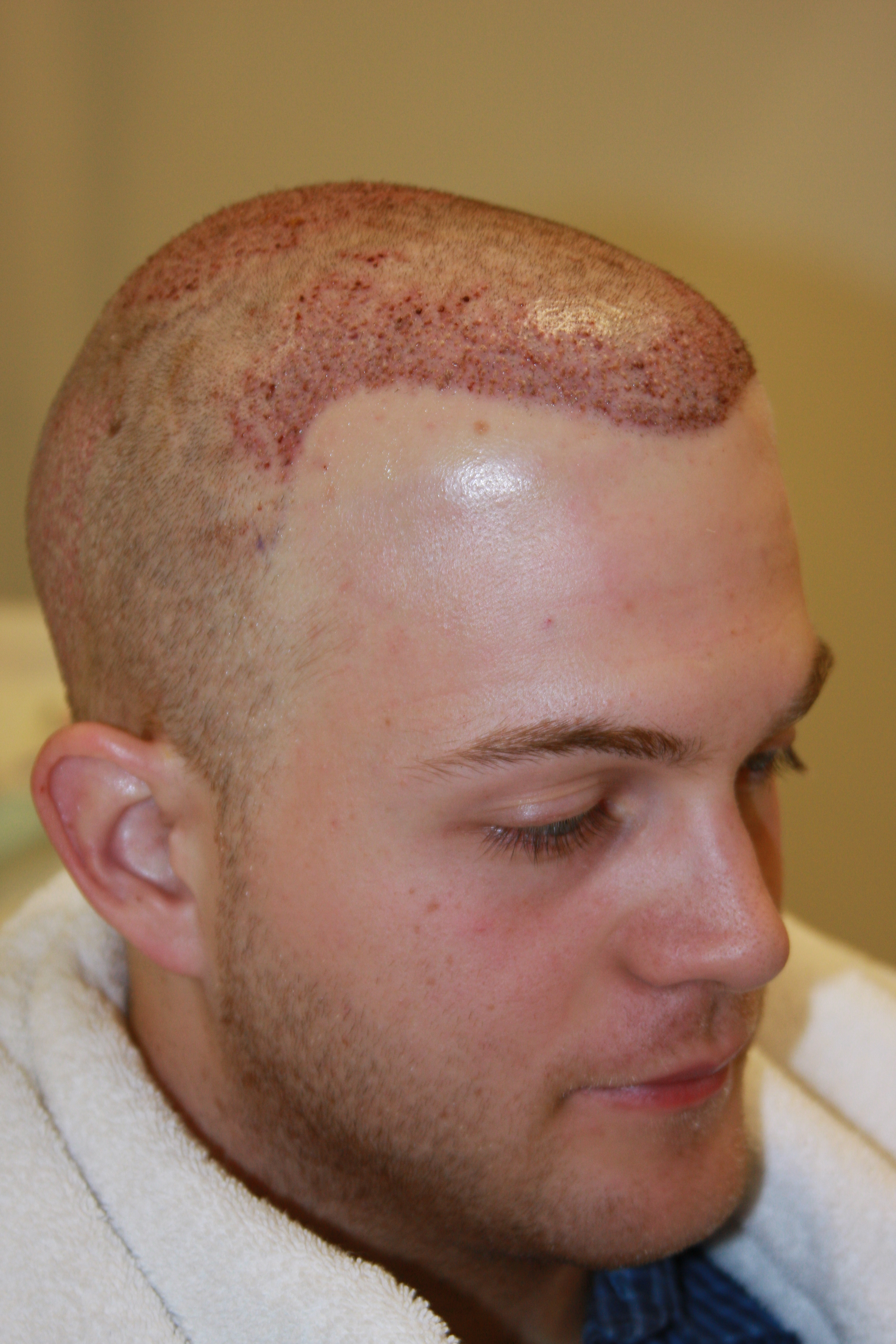 Remarkable, Hair plugs trypophobia