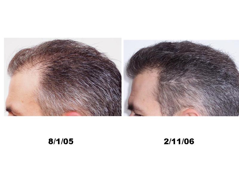 Hair growth after propecia