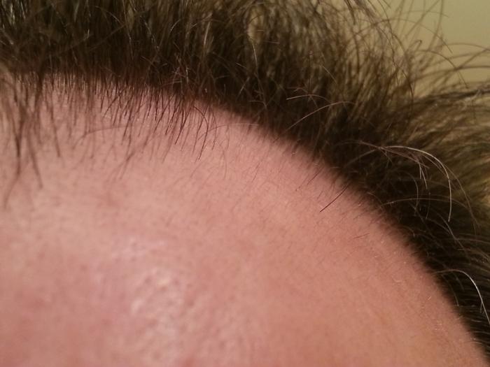 La leucosis y la caída de los cabello