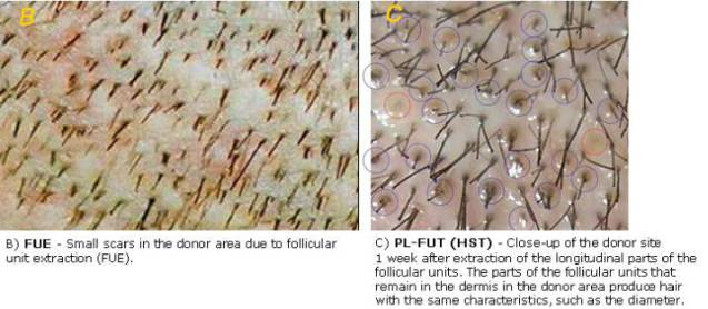 Donor Hair Follicle Preservation By Partial Follicular Unit Extraction A Method To Optimize Transplantation Http Www Ncbi Nlm Nih Gov Pubmed