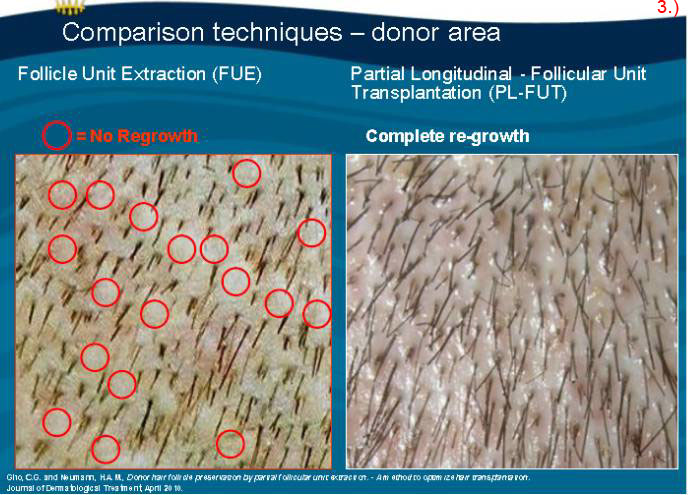 Regrowth Of Donor Area