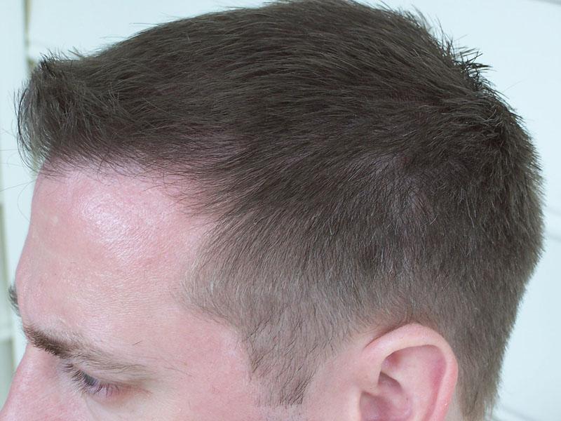 Hair Loss Forum 10 Months Post Op 25 Guard Buzz