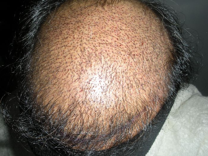 Madhu Hairtransplant Results | hairstylegalleries.com
