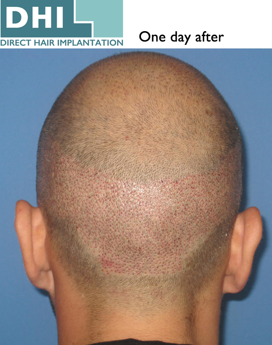Hair Loss Forum - DHI hair transplant Technique 1 day after session