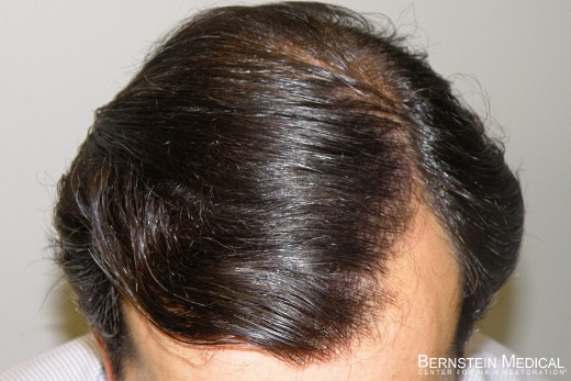 arimidex side effects hair loss