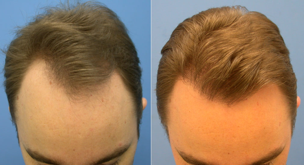 Minoxidil 5 Before And After Photos Hairstyle Gallery