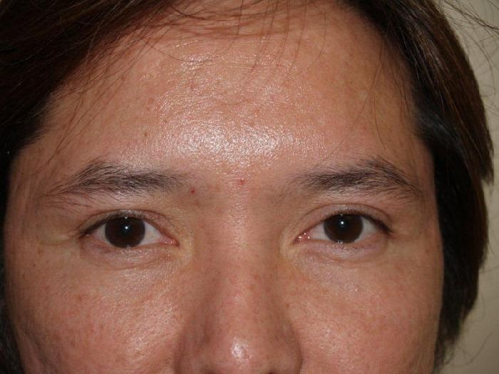 Hair Loss Forum Dr Epstein Female Eyebrow Transplant Patient 600