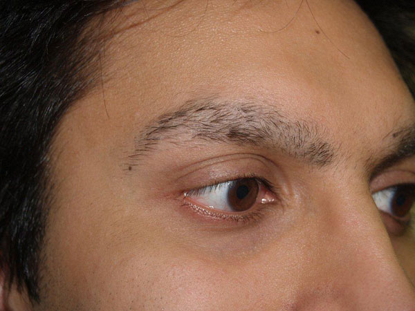 Hair Loss Forum Dr Epstein Before And After Male Eyebrow And