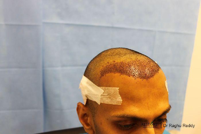 Frontal Hair Loss Propecia Php