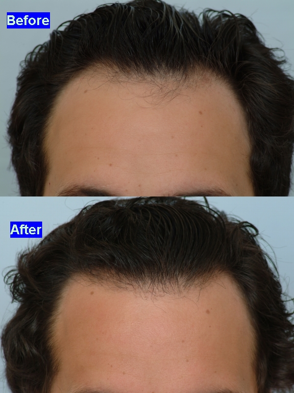 Propecia stop frontal hair loss
