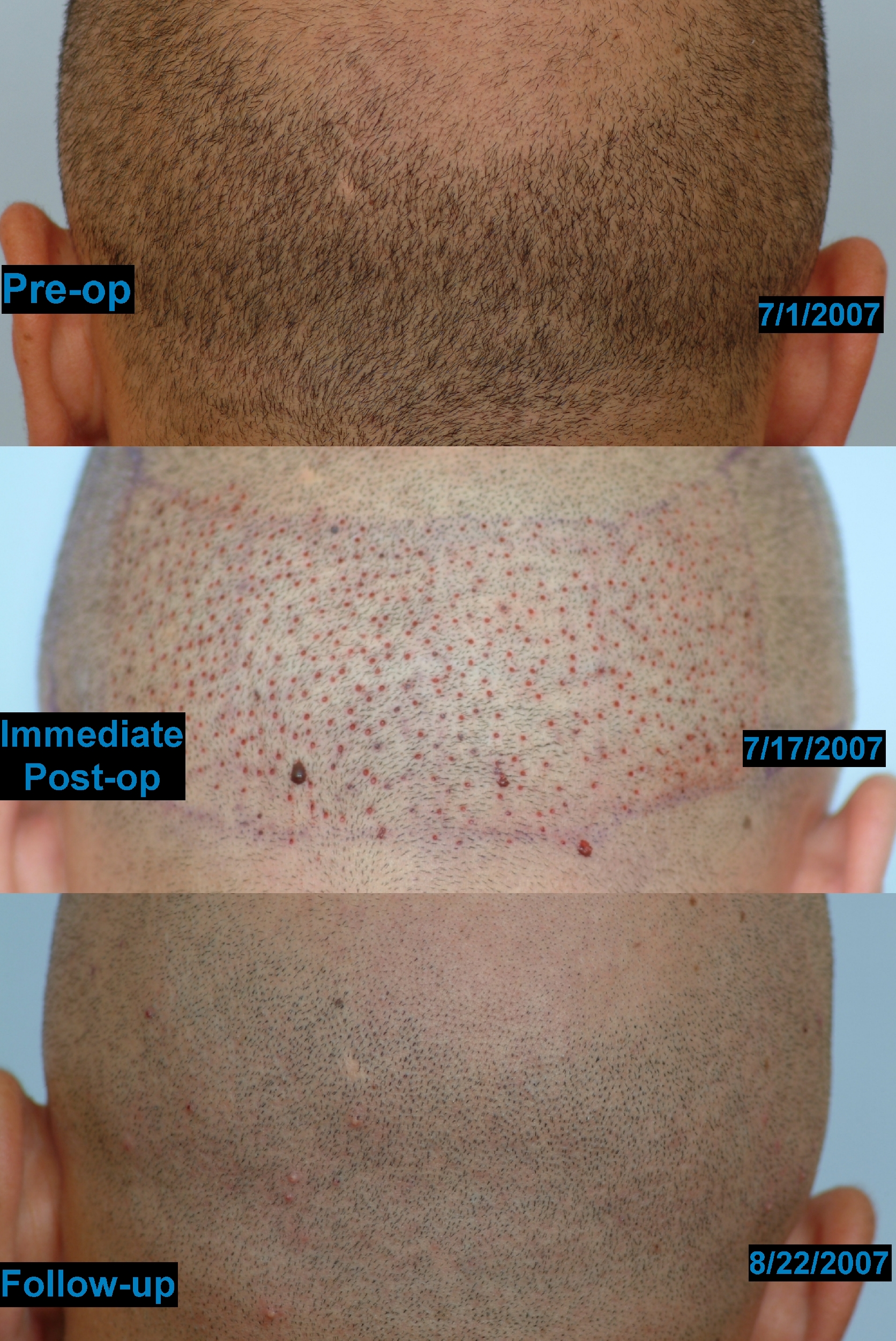 Follicular study results - Fertility and Trying to ...