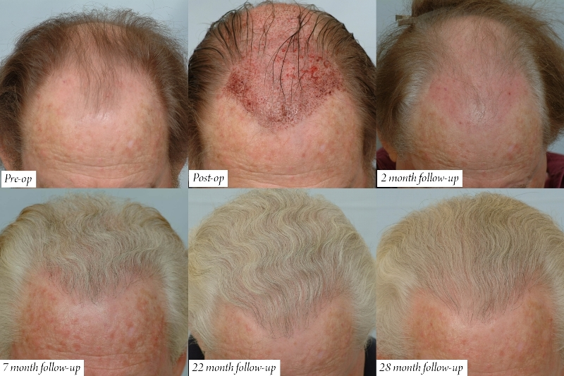 Hair transplant results after 1 month