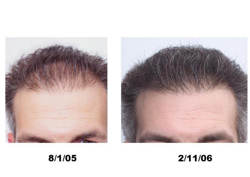 Propecia   hair loss drug uses, side effects  fda warnings
