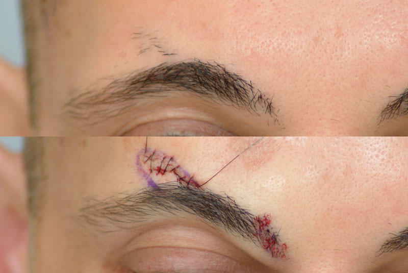 Hair Loss Forum Eyebrow Hair Relocated