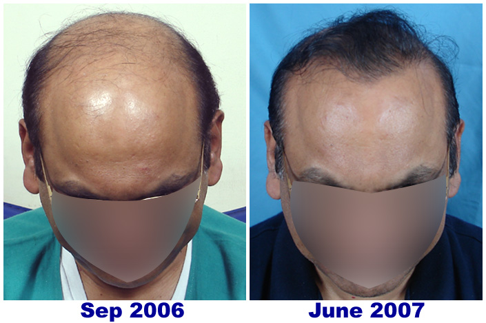 Scalp Psoriasis and hair fall  My experience 2