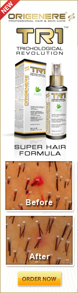 origenere hair regrowth treatment