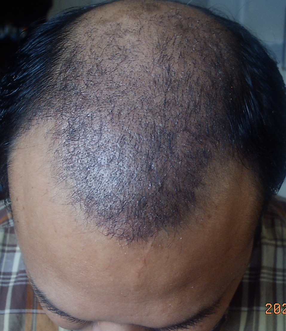 1 Month To 3 5 Months After The Hair Transplant