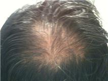 Hair Loss Forum Will Minoxidil Regrow This Crown Back 2 Yrs Of Avodart Destroyed My Hair