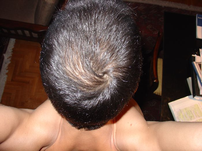 Hair Loss Forum Dutasteride Survey One Year On